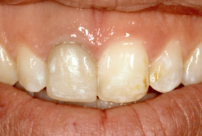 Restoring Discolored Endodontically Treated Teeth: Case 4