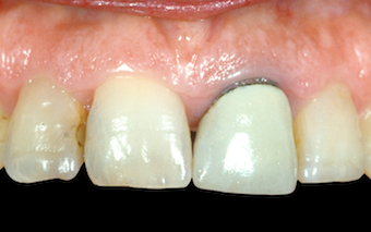 Restoring Discolored Endodontically Treated Teeth: Case 6