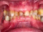 Dentition-1