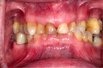 Can Treating Worn Dentition Be This Easy?