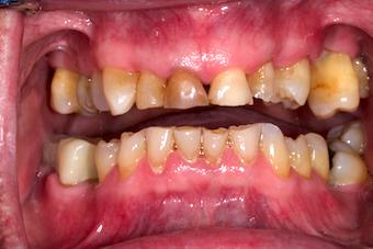 Dentition-2