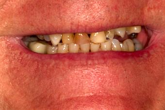 Dentition-3