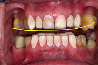 Dentition-4