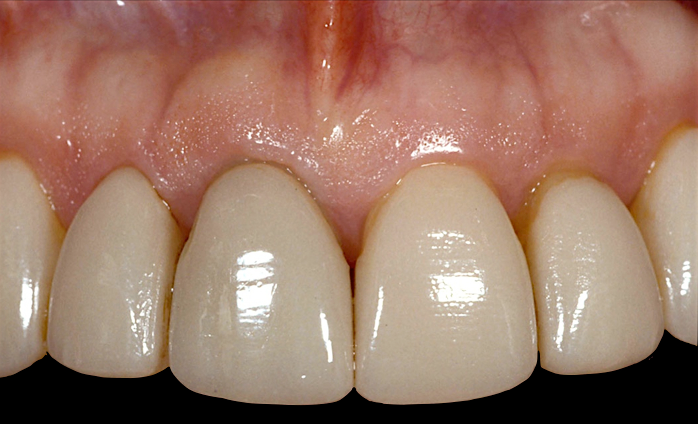 Restoring Discolored Endodontically Treated Teeth: Case 7