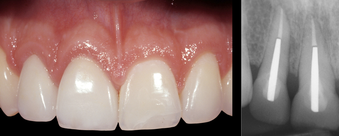 The final dental restorations 8 year post-treatment