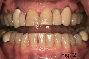 dental braces figure 2