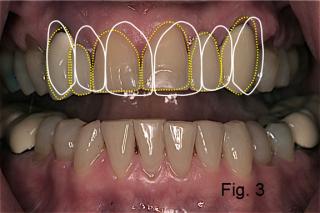 dental braces figure 3