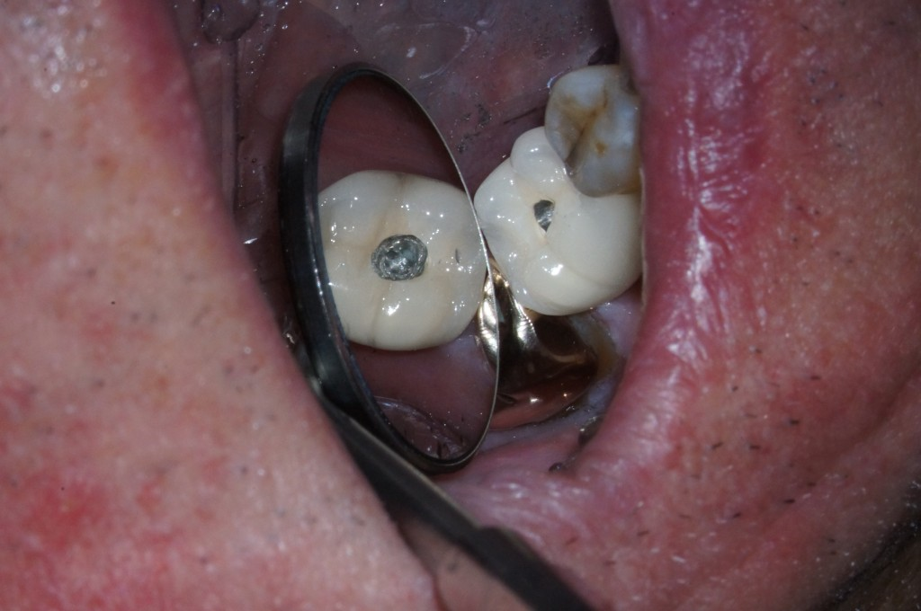 Dealing With a Loose Implant Crown