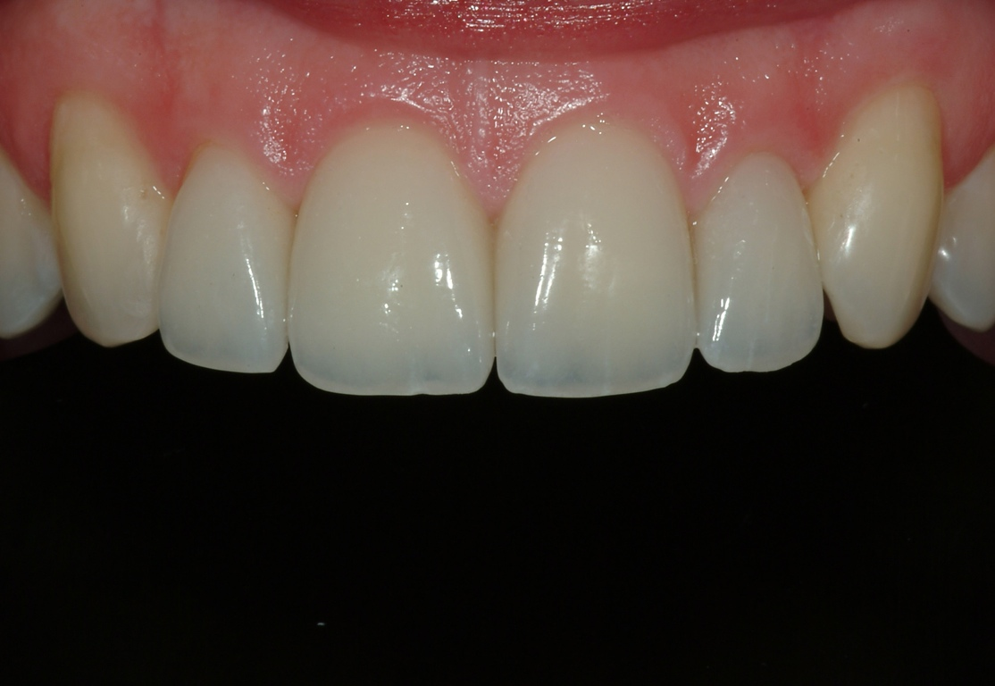 Condylar Inclination? I'm Just Restoring the Front Teeth...