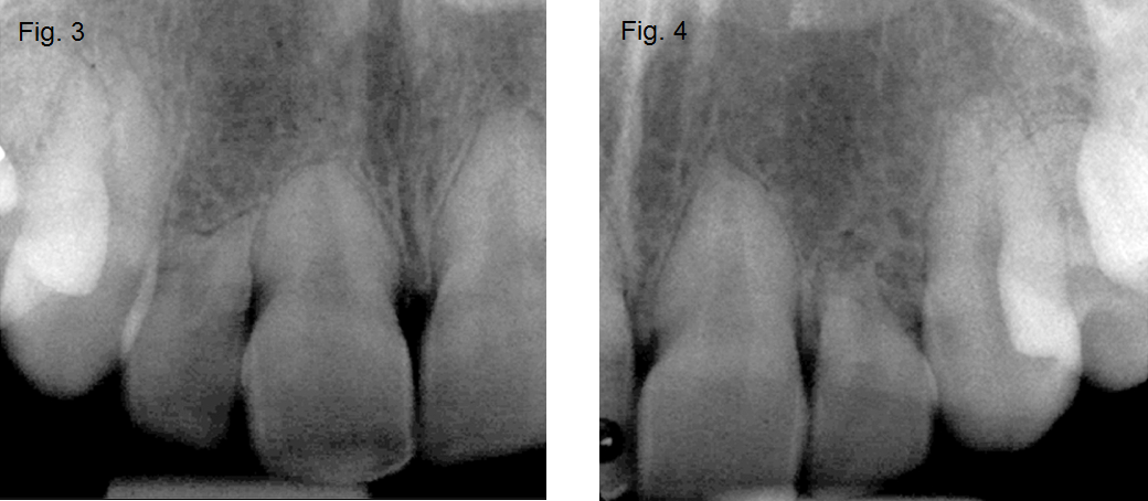 fig3_4