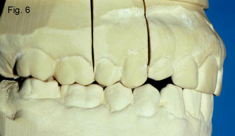 Anterior open bites Figure 6