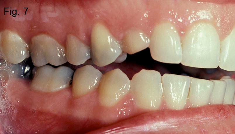Anterior open bites Figure 7