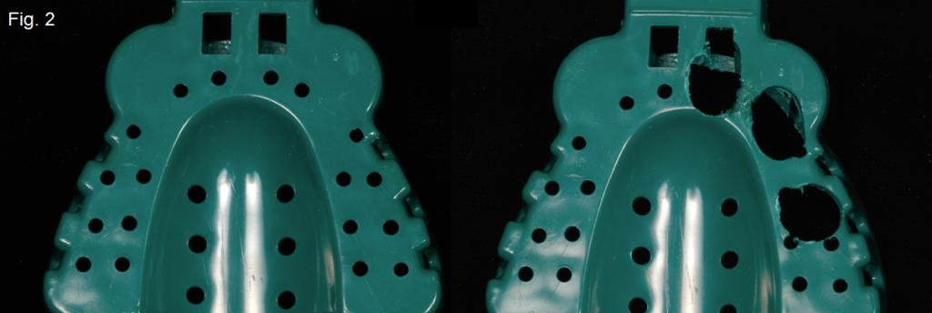 Implant Impressions Figure 2