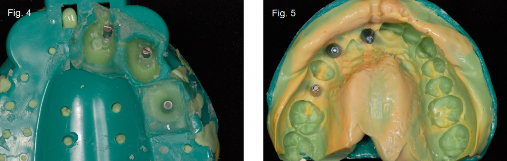 implant impressions figure 4 and 5