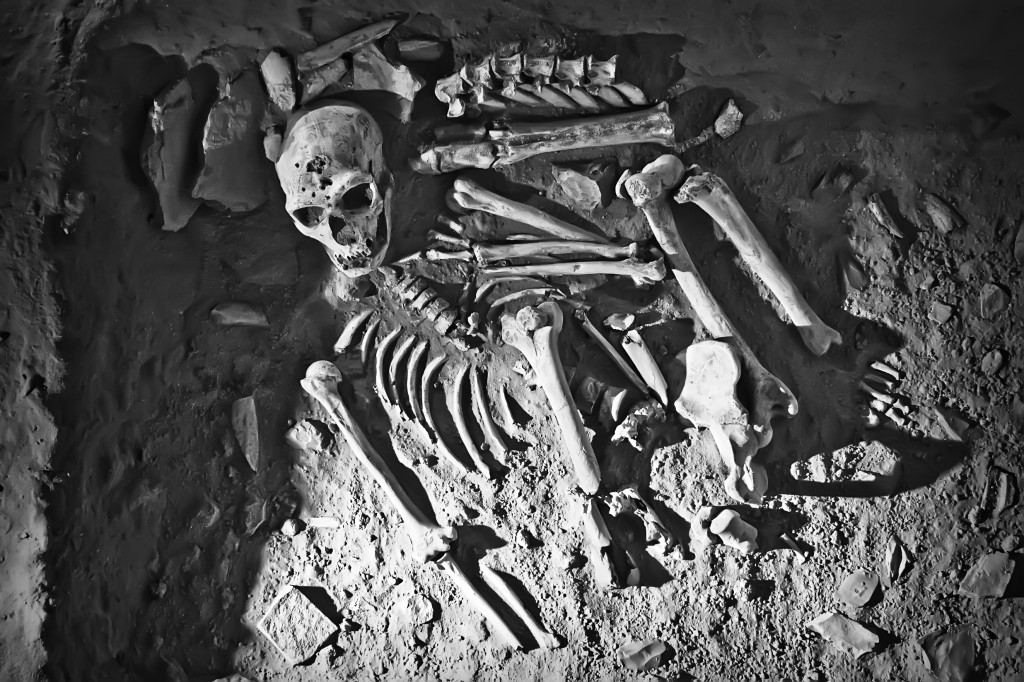 Study: Poisonous Weed Contributed to Sterling Oral Health of Ancient People