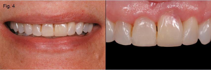 ankylosed tooth 4
