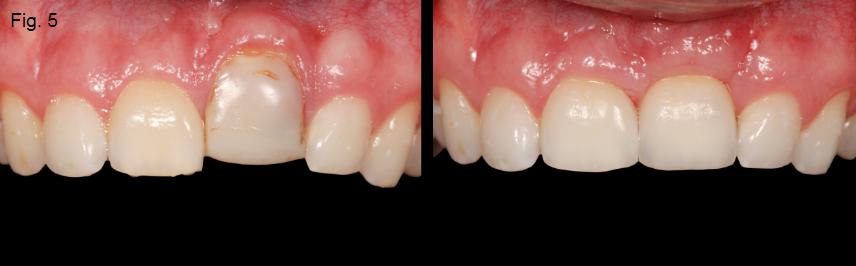 ankylosed tooth 5