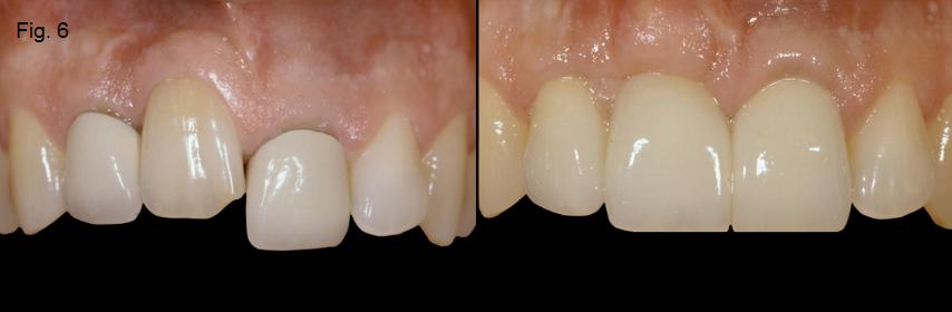 ankylosed tooth 6