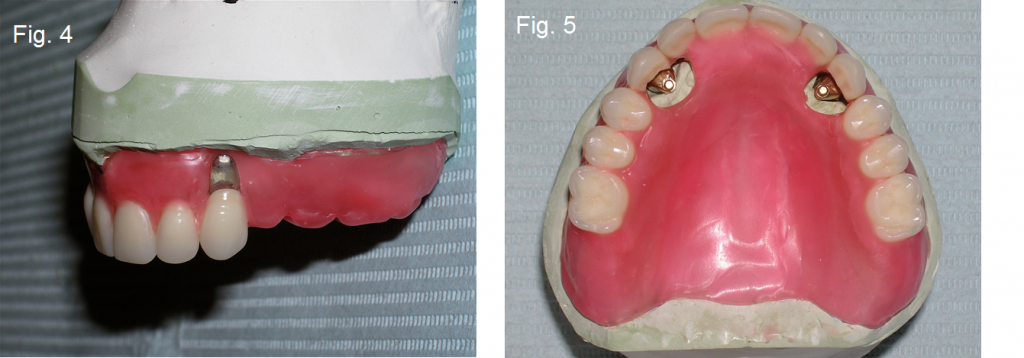 dental implants fig4 5