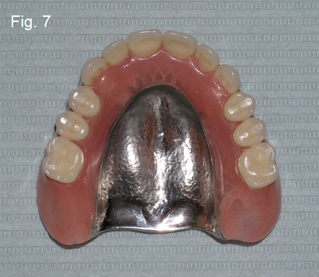 dental implants fig7
