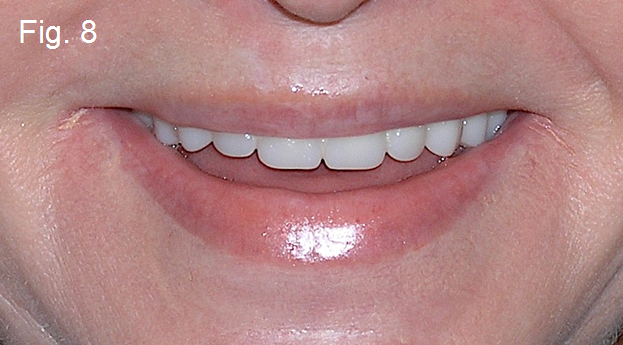 dental implants fig8