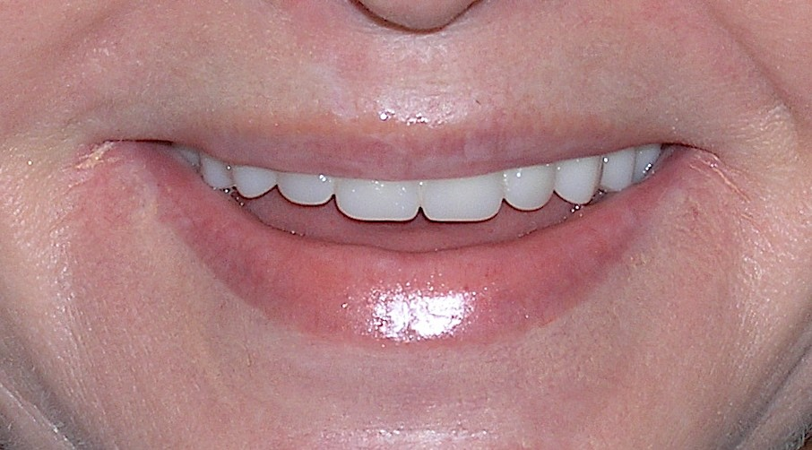 Maxillary Prosthesis Retained by Two Dental Implants