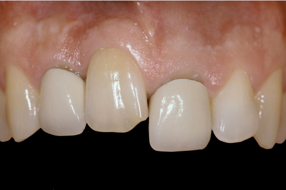 Ankylosis Part II: Treating Adults With an Ankylosed Tooth