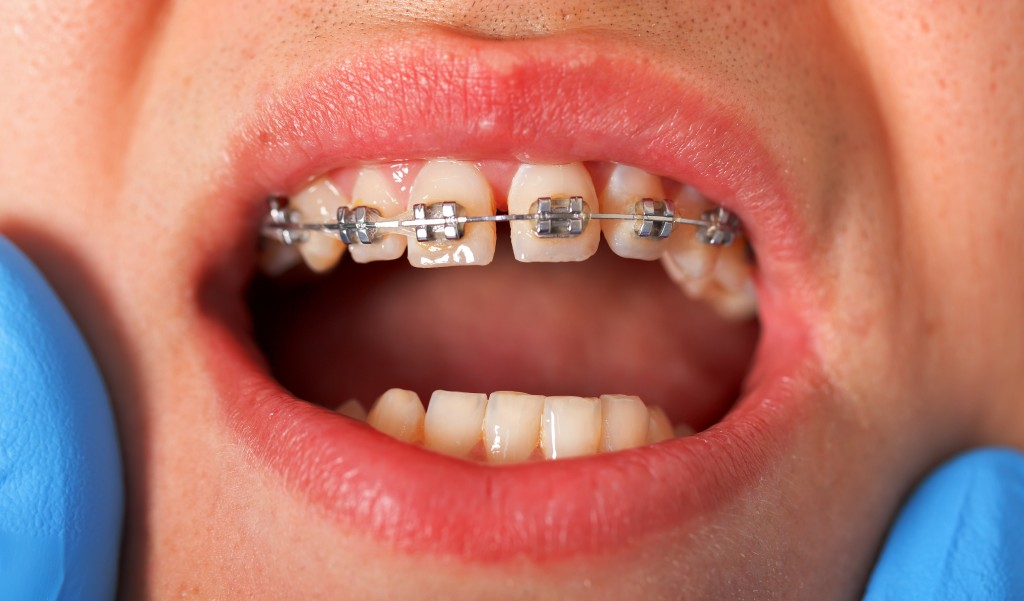 Transferring Retention for Dental Patients with Problem Retention Issues