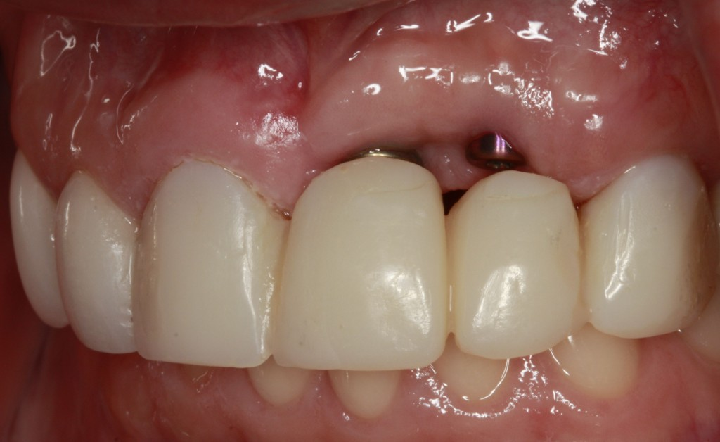 Implant Supported Fixed Bridge for Maxillary Incisors