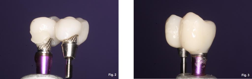 implant provisionals