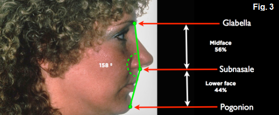 anterior open bites Figure 3