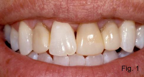 anterior open bite