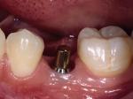 implant abutment 1