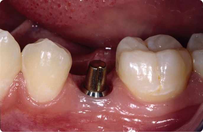 Implant Abutments: What Do I Choose?