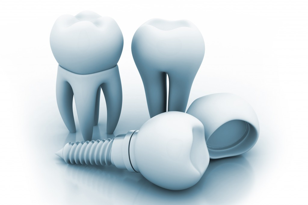Should You Probe Dental Implants?