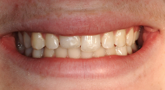 Ankylosis Part III: Treating Children With Ankylosed Permanent Teeth