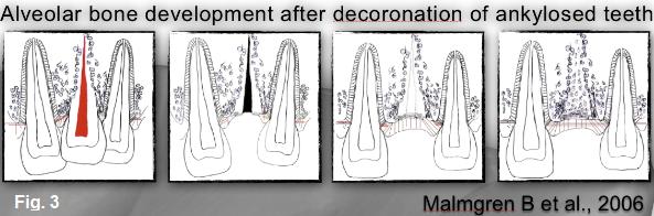 decoronation 3