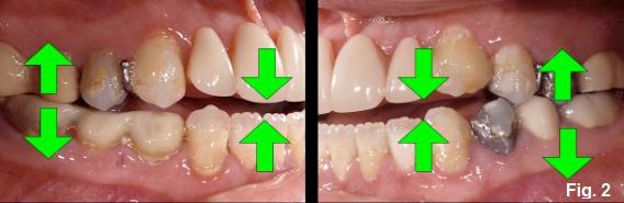 anterior open bites figure 2