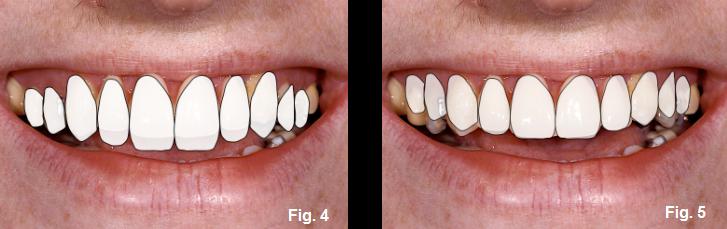 anterior open bites figures 4-5
