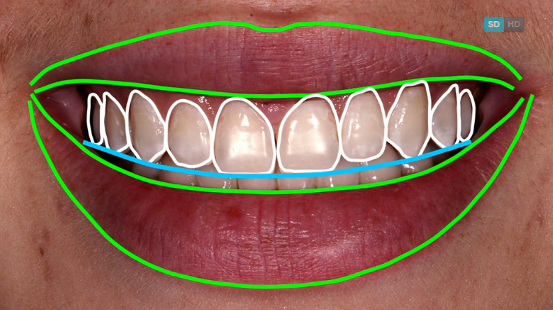 New from Dr. Frank Spear: Treating Canted Incisal/Occlusal Planes