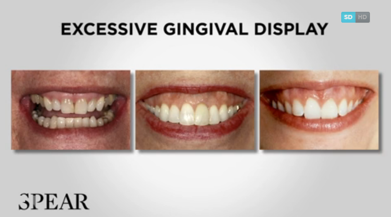 New from Dr. Frank Spear: Management of Gingival Levels - Part I