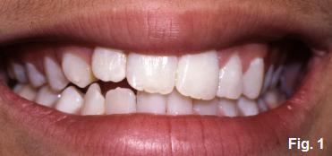 anterior open bites figure 1