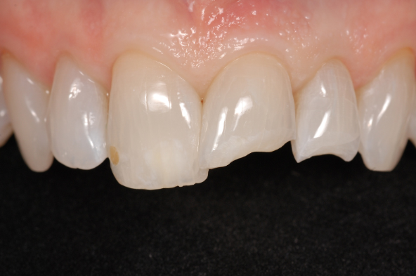 Composite Restorations vs. Ceramic Restorations