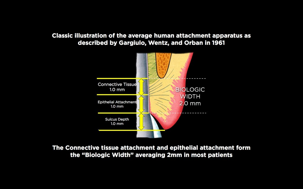 biologic width figure 1