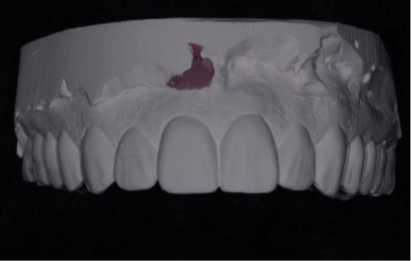 Crown Lengthening Part II: Matrix Options