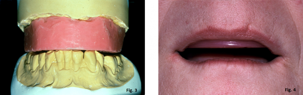 occlusal plane guide