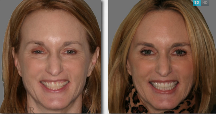 The Periodontal-Restorative Interface is Now Live!