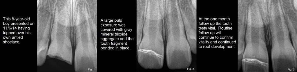 dental trauma figures 1-3