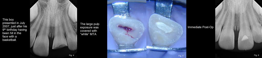 dental trauma figures 4-6