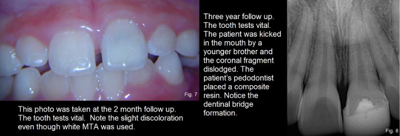 dental trauma figures 7-8